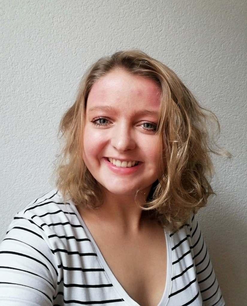 Mijn Alopecia Areata: update oktober2018